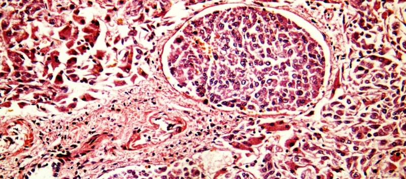 Positive Top-Line Results for Ramucirumab in HCC Announced