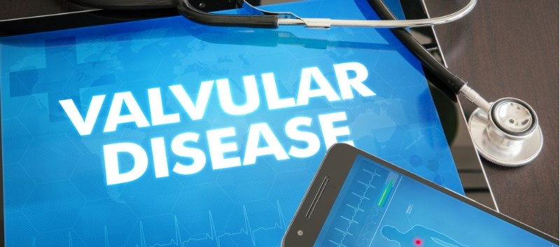 Valvular heart disease guidelines updated