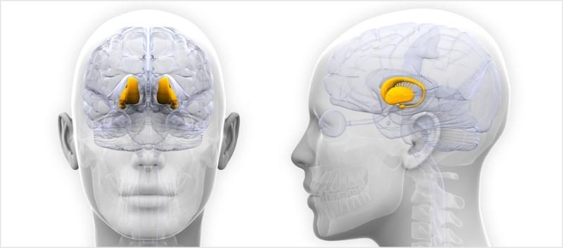 Hypothalamic Activation Greater in Chronic vs Episodic Migraine