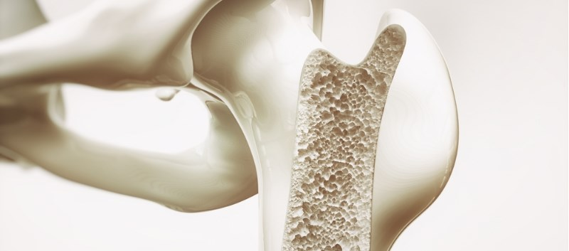 USPSTF Issues Recommendation on Screening for Osteoporosis