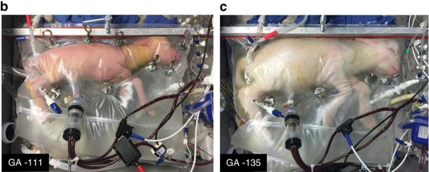 Artificial 'Womb' Could Potentially Up Survival of Extremely Premature Infants
