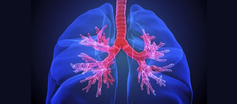 NDA for Novel Amikacin Inhalation Submitted for Rare Lung Infection