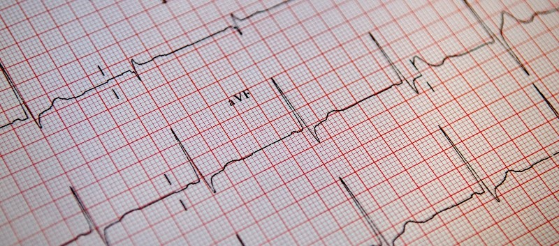USPSTF Reviews Benefits and Harms of A-Fib Screening With ECG