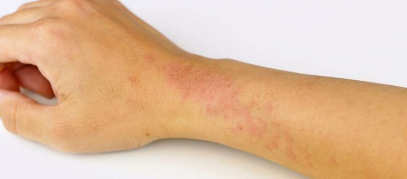 Which Medications Are Prescribed Most Often for Atopic Dermatitis?