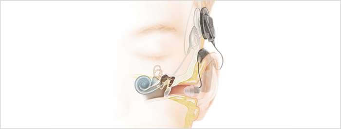 The approval was based on a clinical study of 39 patients who had the implant for at least 1 year