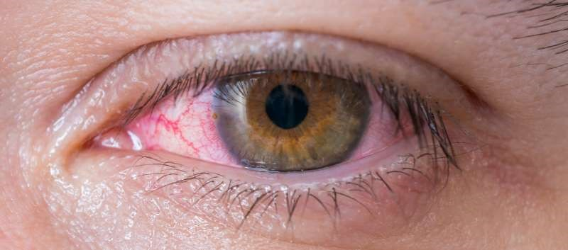 Erlotinib Overdose May Lead to Rapid Onset of Ocular Toxicity