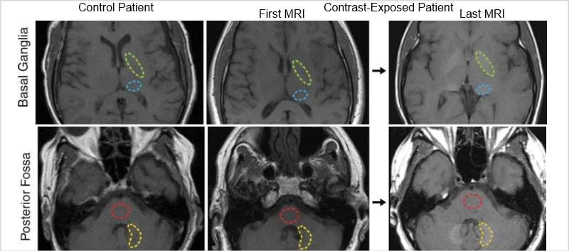 Researchers aimed to ID the neurotoxic potential of gadolinium accumulation after IV administration of gadolinium-based contrast media