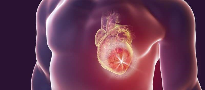 Revised Equation May Improve Accuracy of Cardiovascular Disease Risk Estimates