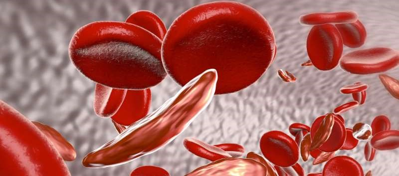 First FDA approval of hydroxyurea for use in pediatric patients with sickle cell disease
