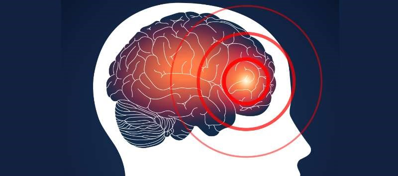Severe traumatic brain injury increases SADHD risk; within TBI group, familial dysfunction ups risk