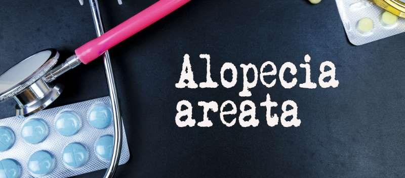 Currently, there are no FDA approved treatments for alopecia areata