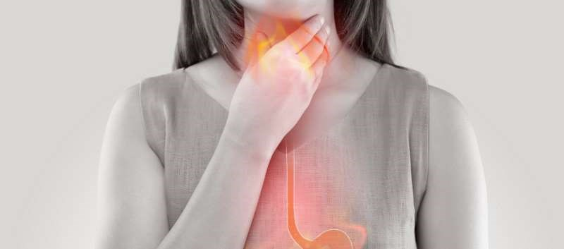 Patients with functional heartburn display similar symptoms as GERD; most often complain of a burning retrosternal discomfort