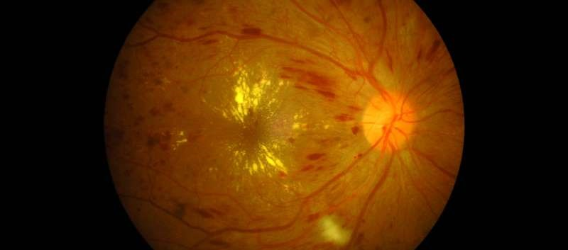 Risk not up in neovascular age-related macular degeneration, diabetic macular edema