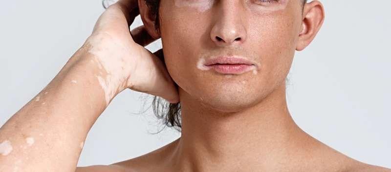 Case reports describe repigmentation of vitiligo with facial involvement