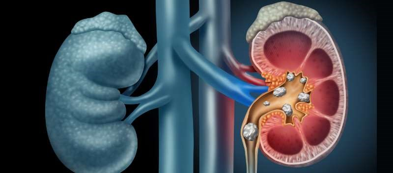 Statin Use May Protect Against Kidney Stone Formation