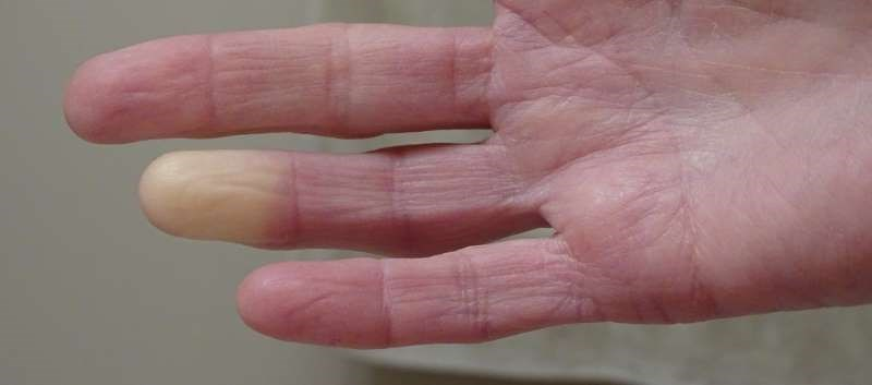Topical Nitrates Effective for Treating Raynaud's Phenomenon