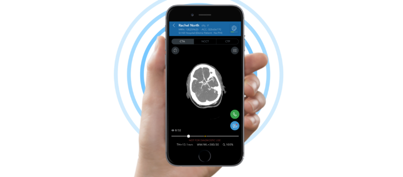 FDA: New Clinical Decision Support Tool Helps ID Stroke Sooner