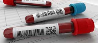 Circulating blood biomarkers related to angiogenesis may help clinicians predict who will have a robust response to sunitinib.