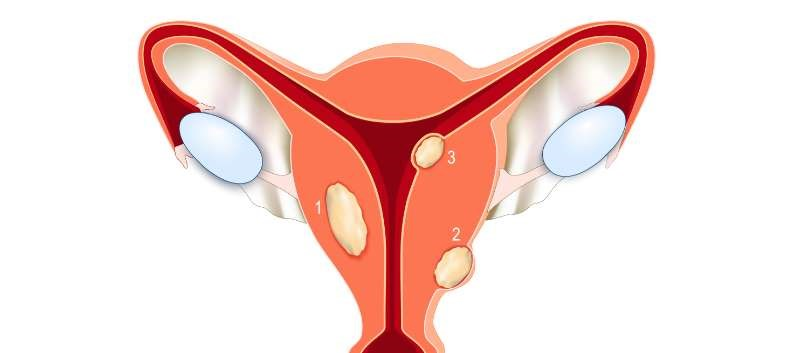 Ulipristal Assessed in Symptomatic Uterine Leiomyomas