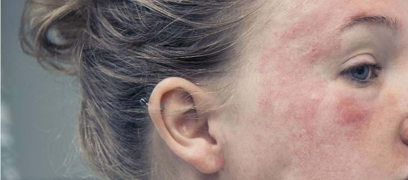 Atopic Dermatitis Places Heavy Burden on Patients