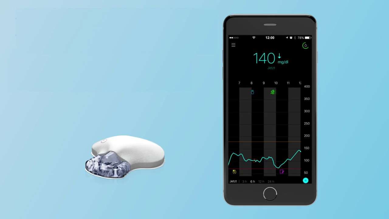 New Smart Cgm System Provides Predictive Alerts To
