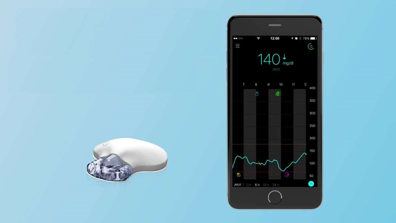 New 'Smart' CGM System Provides Predictive Alerts to Patients With Diabetes