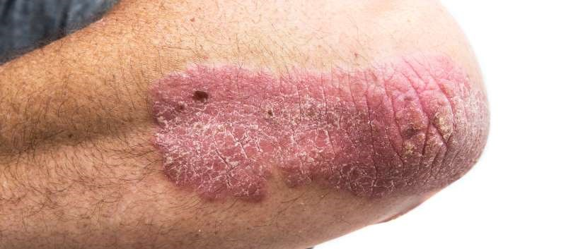 Risankizumab BLA Submitted for Moderate to Severe Plaque Psoriasis