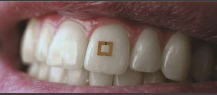 Tiny Tooth Sensor Monitors Dietary Intake, Sends Info to a Mobile Device