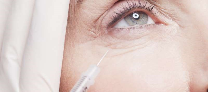 Hyaluronic Acid Filler Feasible for Correcting Infraorbital Hollows