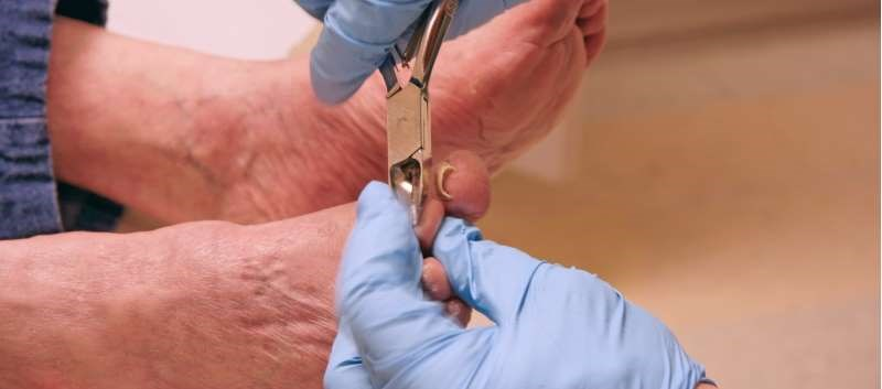 Untrimmed Toenails: A Marker of Functional Status in Older Patients?