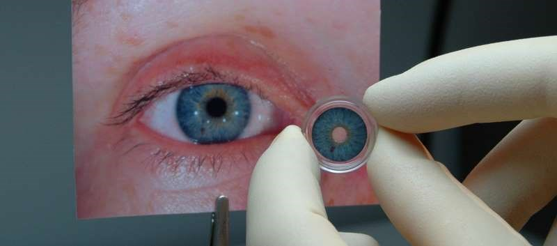 First Artificial Iris FDA-Approved for Aniridia, Other Iris Defects