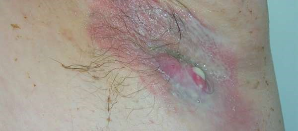 Bermekimab Looks Promising for Hidradenitis Suppurativa