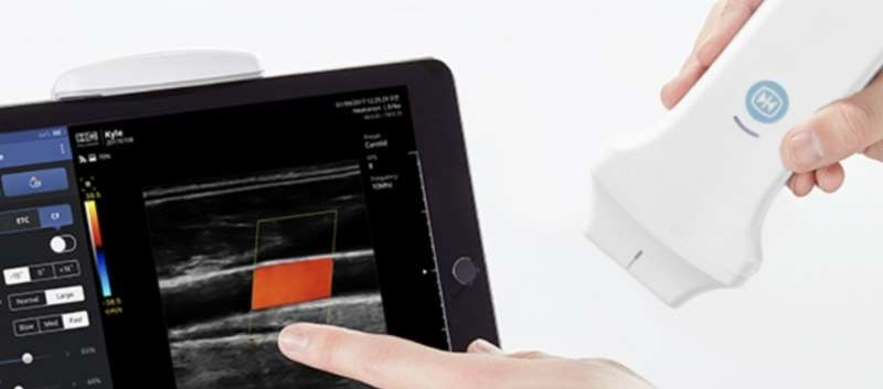 Handheld, Wireless Ultrasound Device SONON 300L Now Available