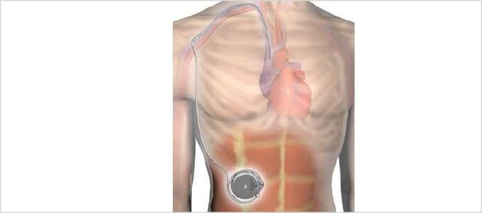 Implantable System for Remodulin Approved for Patients With PAH