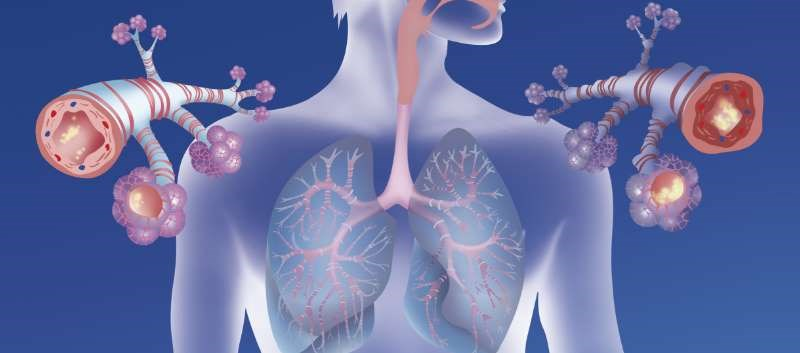 Biologic Therapy Selection for Severe Asthma: Factors to Consider