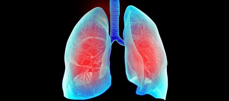 Commonly Prescribed Antihypertensives Linked to Increased Lung Cancer Risk