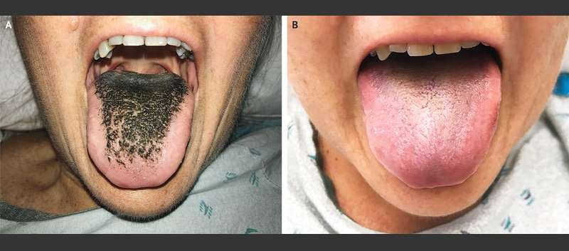 Patient's Black Hairy Tongue Linked to Antibiotic Therapy