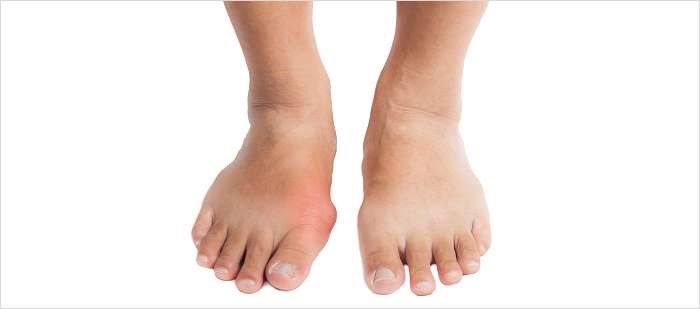 Consensus Statement Issued on Management of Foot, Ankle Gout