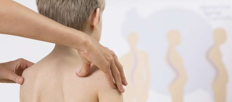 Juvenile Spondyloarthritis: Classification and Treatment Considerations