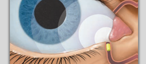 Dextenza Approved for Ocular Pain Following Ophthalmic Surgery
