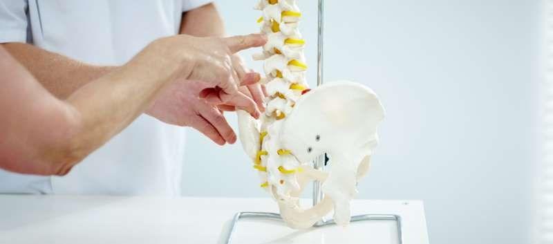 Ixekizumab Tops Placebo in Axial Spondyloarthritis