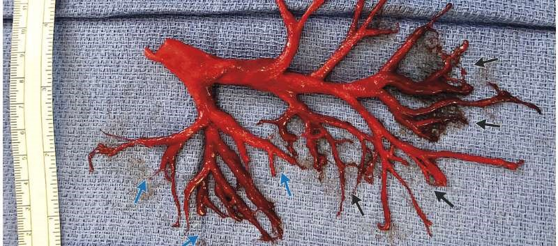 Heart Failure Patient Coughs Up Bronchial Tree-Shaped Blood Clot