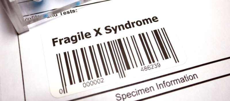 Mavoglurant Improves Visual Attention in Fragile X Syndrome