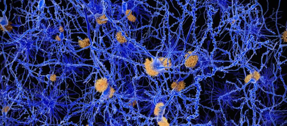Trials Evaluating Crenezumab in Early Alzheimer Disease Halted